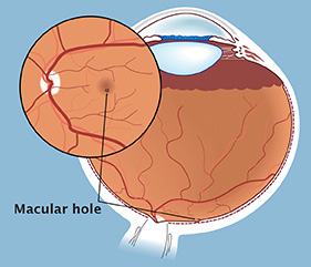 The macula is the central portion of the retina, the light sensitive layer at the back of the eye.