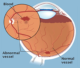 In proliferative diabetic retinopathy abnormal blood vessels develop on the retina. These vessels can lead to visual loss through bleeding or scar tissue formation.