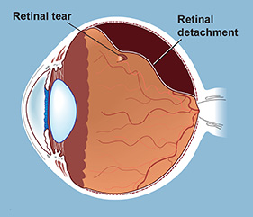 The retina is the thin, light-sensitive layer of tissue that lines the inside back wall of the eye.